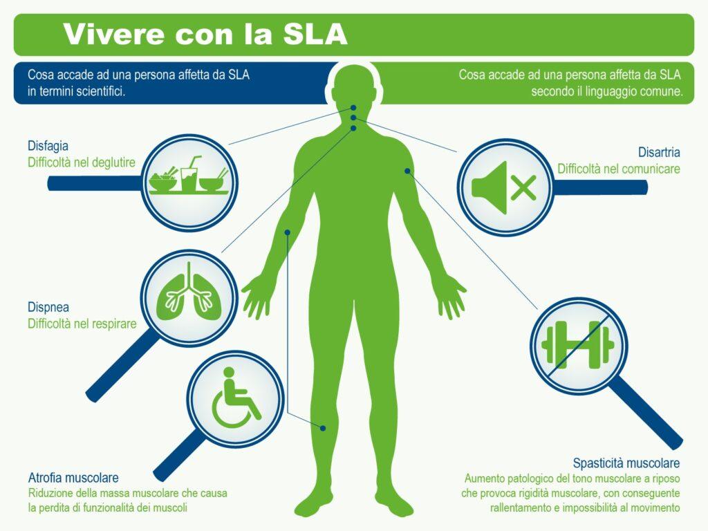 la sclerosi laterale amiotrofica